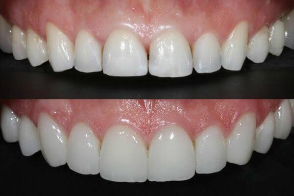 Lentes de Contato Dental