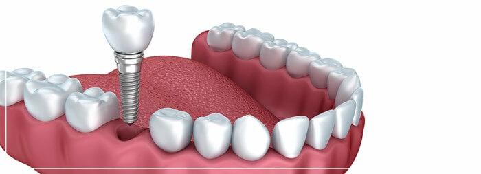 Ilustração de um Implante Dentário