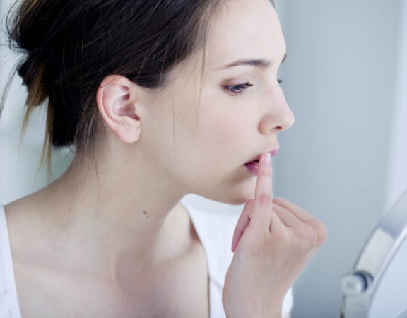 Moça com herpes labial