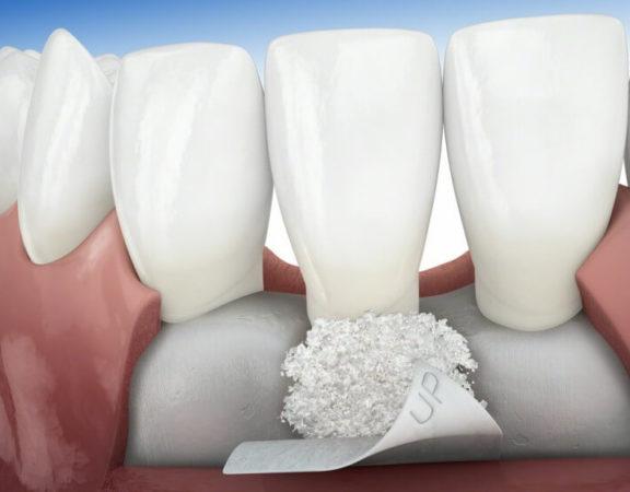 Ilustração de enxerto ósseo dentário