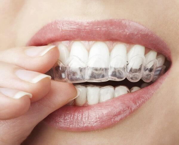 Mulher com moldeira para clareamento dental caseiro